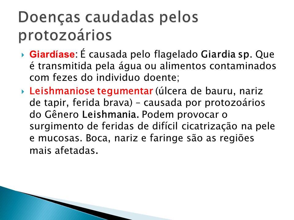 Giardíase : É causada pelo flagelado Giardia sp. Que é transmitida pela água ou alimentos contaminados com fezes do individuo doente; Leishmaniose teg