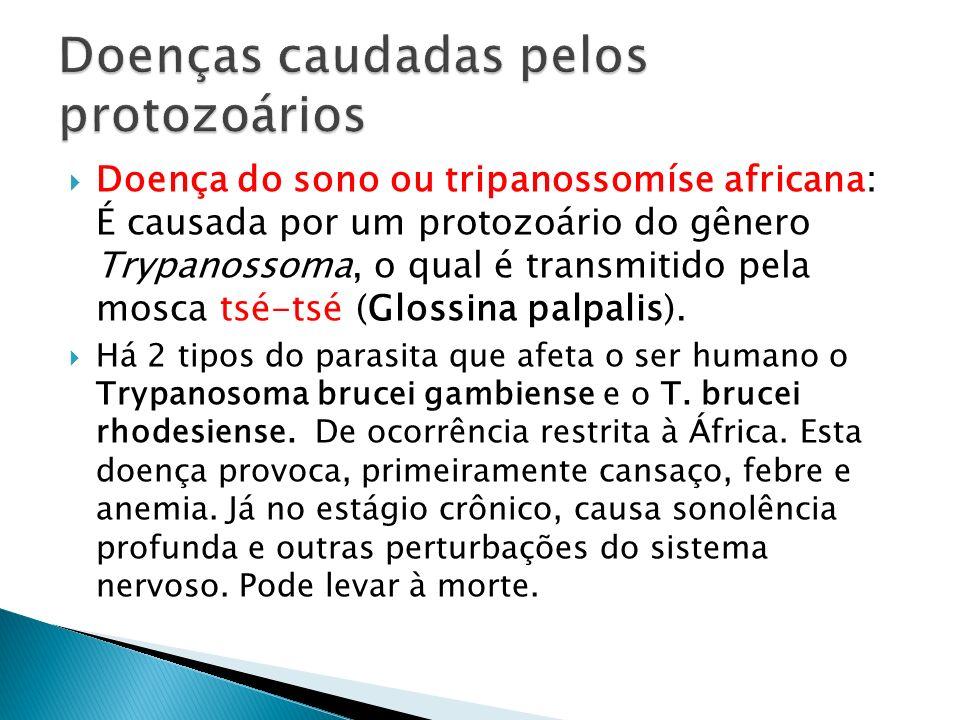 Doença do sono ou tripanossomíse africana: É causada por um protozoário do gênero Trypanossoma, o qual é transmitido pela mosca tsé-tsé (Glossina palp