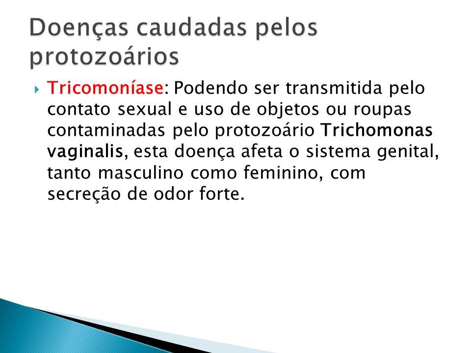 Tricomoníase: Podendo ser transmitida pelo contato sexual e uso de objetos ou roupas contaminadas pelo protozoário Trichomonas vaginalis, esta doença