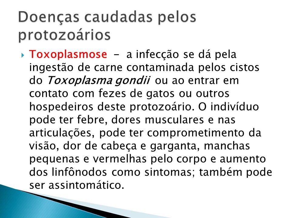 Toxoplasmose - a infecção se dá pela ingestão de carne contaminada pelos cistos do Toxoplasma gondii ou ao entrar em contato com fezes de gatos ou out