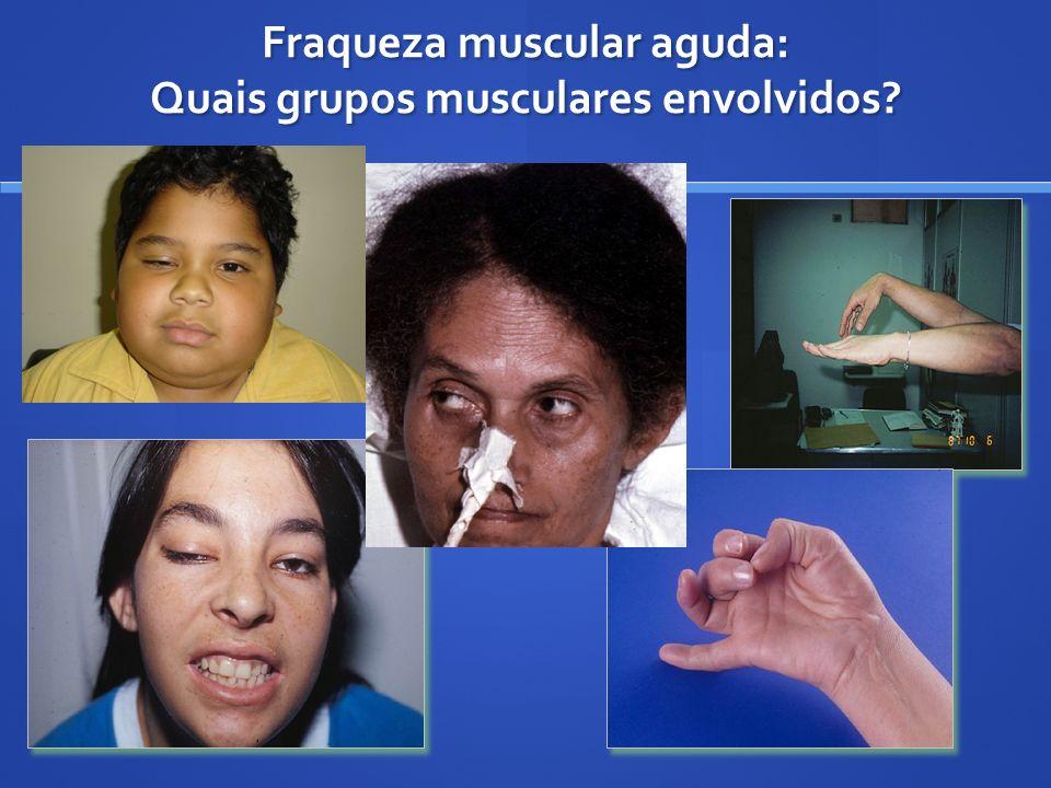 Fraqueza muscular aguda: Quais grupos musculares envolvidos?