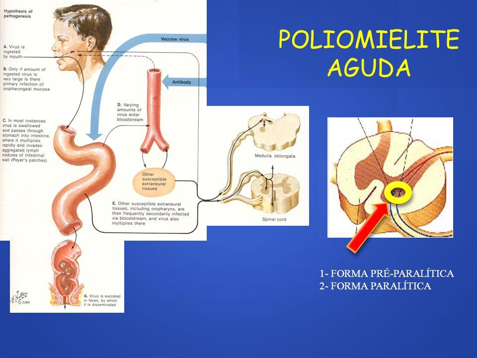 POLIRRADICULONEURITE INFLAMATÓRIA AGUDA (SÍNDROME DE GUILLAIN-BARRÉ): FRAQUEZA ASCENDENTE ARREFLEXIA / HIPORREFLEXIA DISSOCIAÇÃO PROTEÍNO-CITOLÓGICA EPINEURO PERINEURO ENDONEURO MIELINA