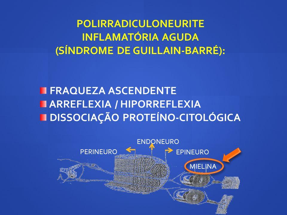 POLIRRADICULONEURITE INFLAMATÓRIA AGUDA (SÍNDROME DE GUILLAIN-BARRÉ): FRAQUEZA ASCENDENTE ARREFLEXIA / HIPORREFLEXIA DISSOCIAÇÃO PROTEÍNO-CITOLÓGICA E