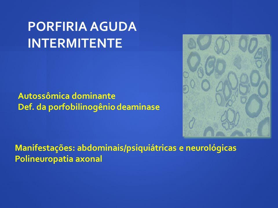 PORFIRIA AGUDA INTERMITENTE Autossômica dominante Def. da porfobilinogênio deaminase Manifestações: abdominais/psiquiátricas e neurológicas Polineurop
