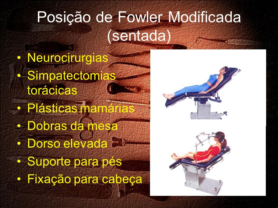 Posição de Fowler Modificada (sentada) Neurocirurgias Simpatectomias torácicas Plásticas mamárias Dobras da mesa Dorso elevada Suporte para pés Fixação para cabeça