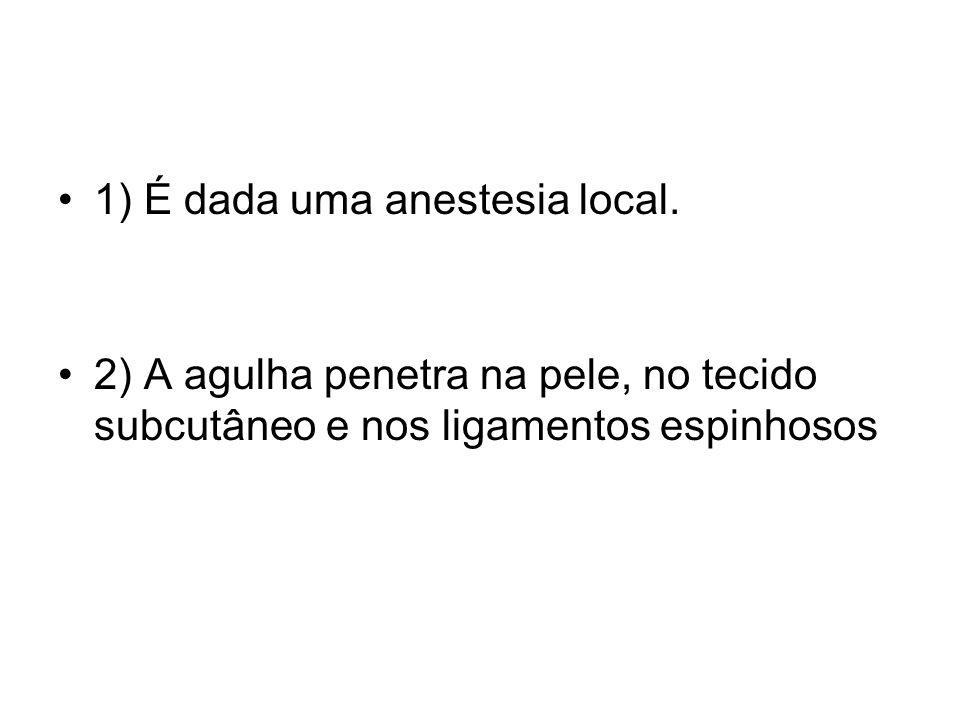 1) É dada uma anestesia local. 2) A agulha penetra na pele, no tecido subcutâneo e nos ligamentos espinhosos