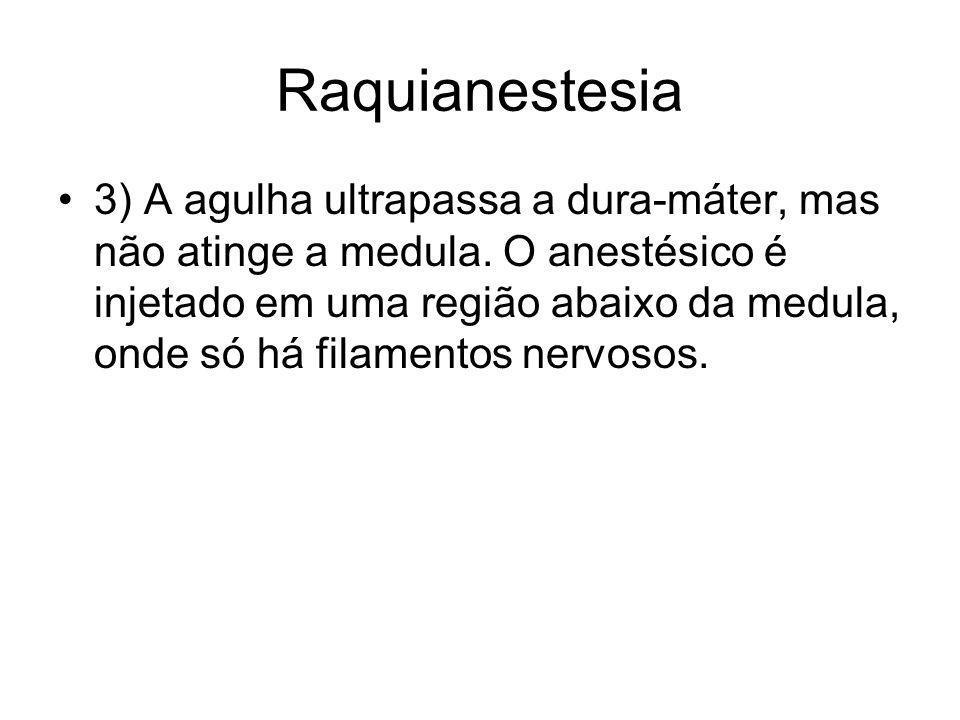 Raquianestesia 3) A agulha ultrapassa a dura-máter, mas não atinge a medula. O anestésico é injetado em uma região abaixo da medula, onde só há filame