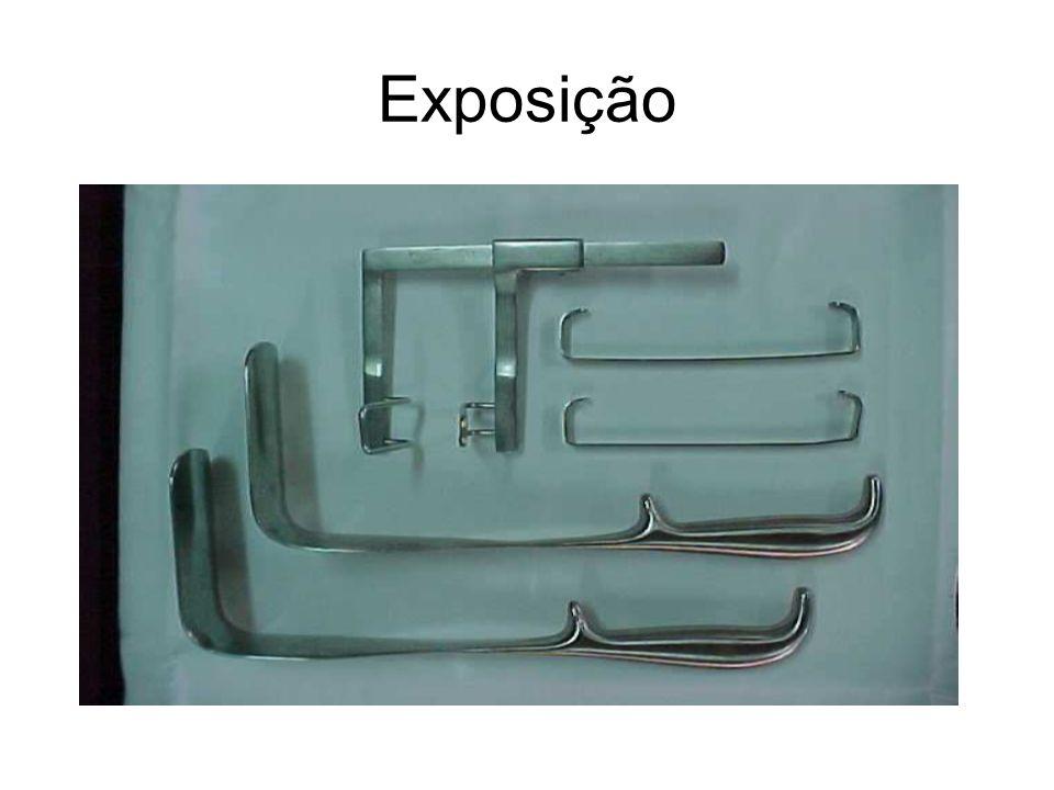 Exposição