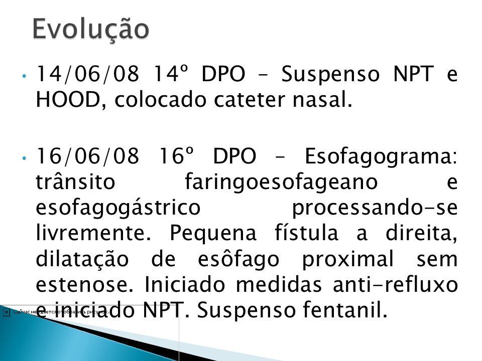 14/06/08 14º DPO – Suspenso NPT e HOOD, colocado cateter nasal. 16/06/08 16º DPO – Esofagograma: trânsito faringoesofageano e esofagogástrico processa