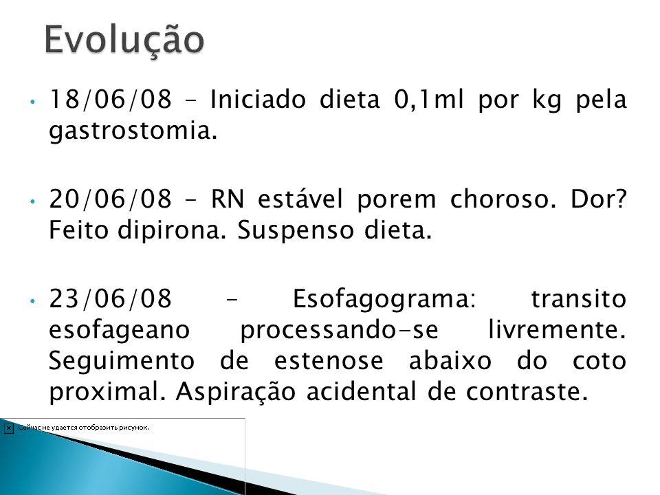 18/06/08 – Iniciado dieta 0,1ml por kg pela gastrostomia. 20/06/08 – RN estável porem choroso. Dor? Feito dipirona. Suspenso dieta. 23/06/08 – Esofago