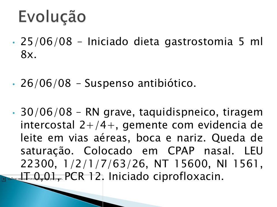 25/06/08 – Iniciado dieta gastrostomia 5 ml 8x. 26/06/08 – Suspenso antibiótico. 30/06/08 – RN grave, taquidispneico, tiragem intercostal 2+/4+, gemen