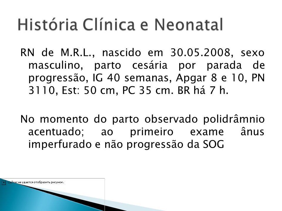 RN de M.R.L., nascido em 30.05.2008, sexo masculino, parto cesária por parada de progressão, IG 40 semanas, Apgar 8 e 10, PN 3110, Est: 50 cm, PC 35 c