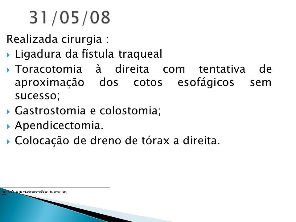 Realizada cirurgia : Ligadura da fístula traqueal Toracotomia à direita com tentativa de aproximação dos cotos esofágicos sem sucesso; Gastrostomia e