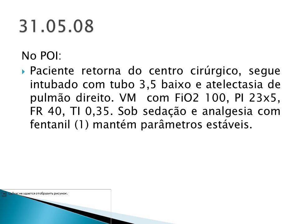 25/06/08 – Iniciado dieta gastrostomia 5 ml 8x.26/06/08 – Suspenso antibiótico.