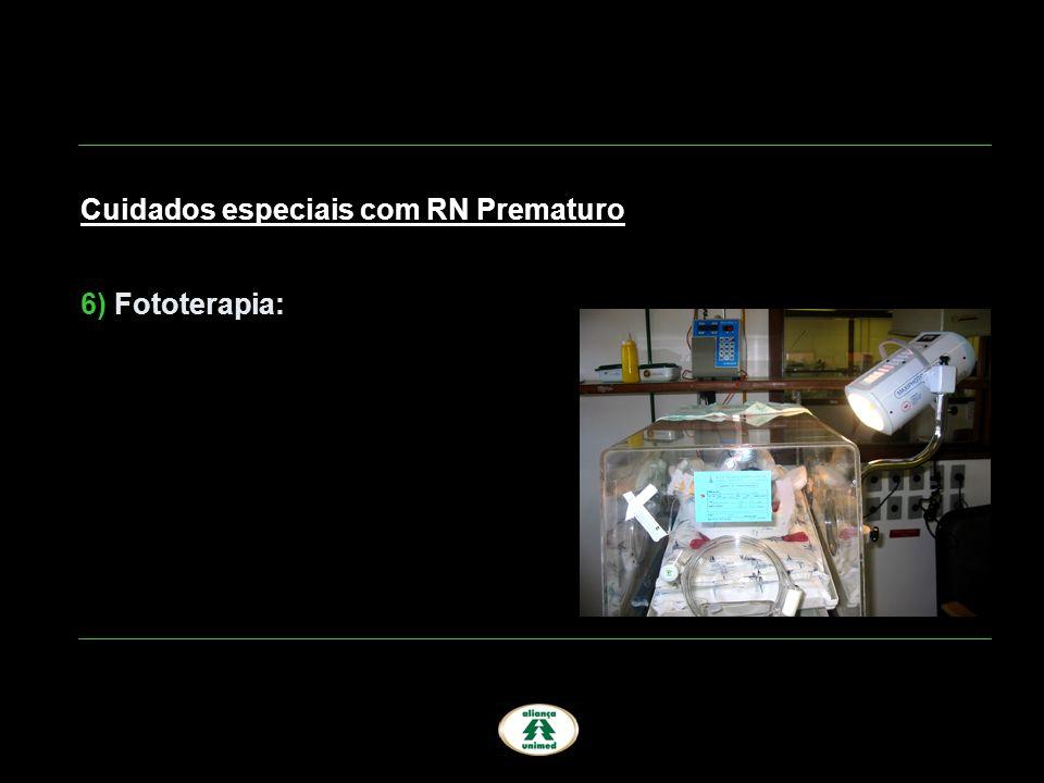Cuidados especiais com RN Prematuro 6) Fototerapia: