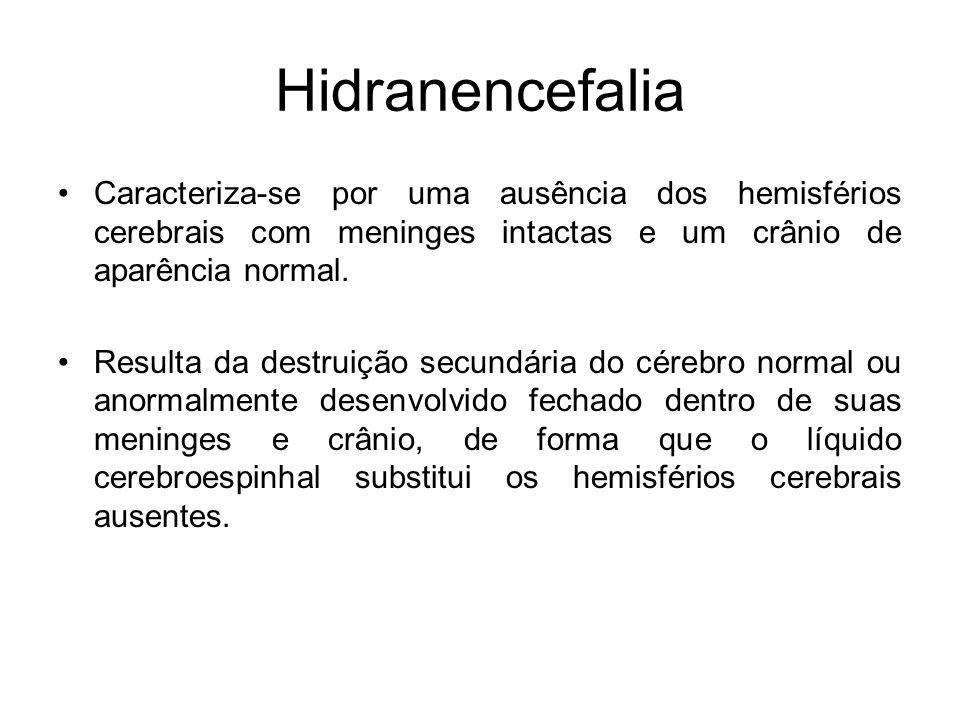Hidranencefalia Caracteriza-se por uma ausência dos hemisférios cerebrais com meninges intactas e um crânio de aparência normal. Resulta da destruição