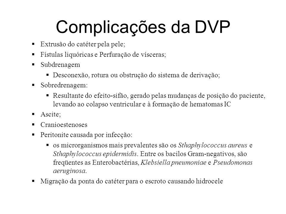 Complicações da DVP Extrusão do catéter pela pele; Fístulas liquóricas e Perfuração de vísceras; Subdrenagem Desconexão, rotura ou obstrução do sistem