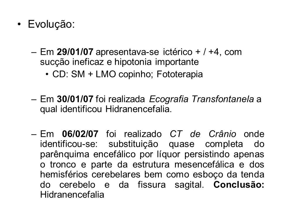 Evolução: –Em 29/01/07 apresentava-se ictérico + / +4, com sucção ineficaz e hipotonia importante CD: SM + LMO copinho; Fototerapia –Em 30/01/07 foi r