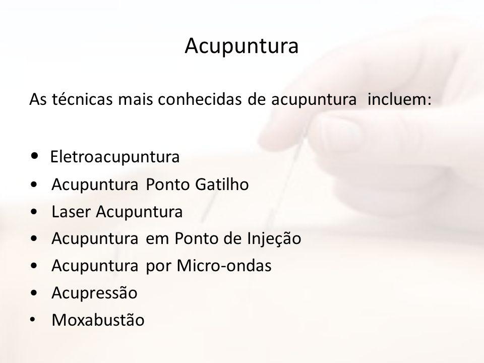 Acupuntura As técnicas mais conhecidas de acupuntura incluem: Eletroacupuntura Acupuntura Ponto Gatilho Laser Acupuntura Acupuntura em Ponto de Injeçã