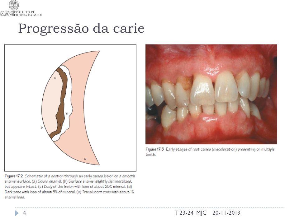 Progressão da carie 20-11-2013T 23-24 MJC4