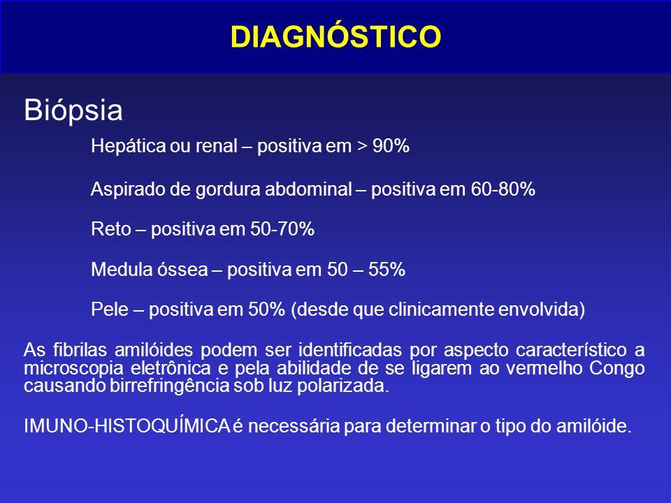 DIAGNÓSTICO Biópsia Hepática ou renal – positiva em > 90% Aspirado de gordura abdominal – positiva em 60-80% Reto – positiva em 50-70% Medula óssea –