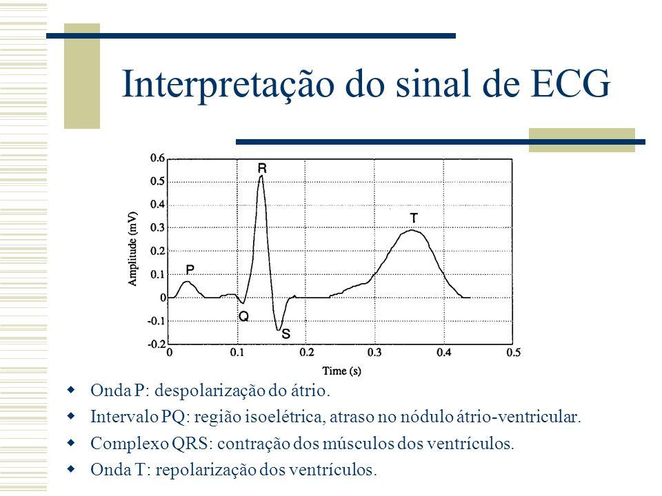 Interpretação do sinal de ECG Onda P: despolarização do átrio. Intervalo PQ: região isoelétrica, atraso no nódulo átrio-ventricular. Complexo QRS: con