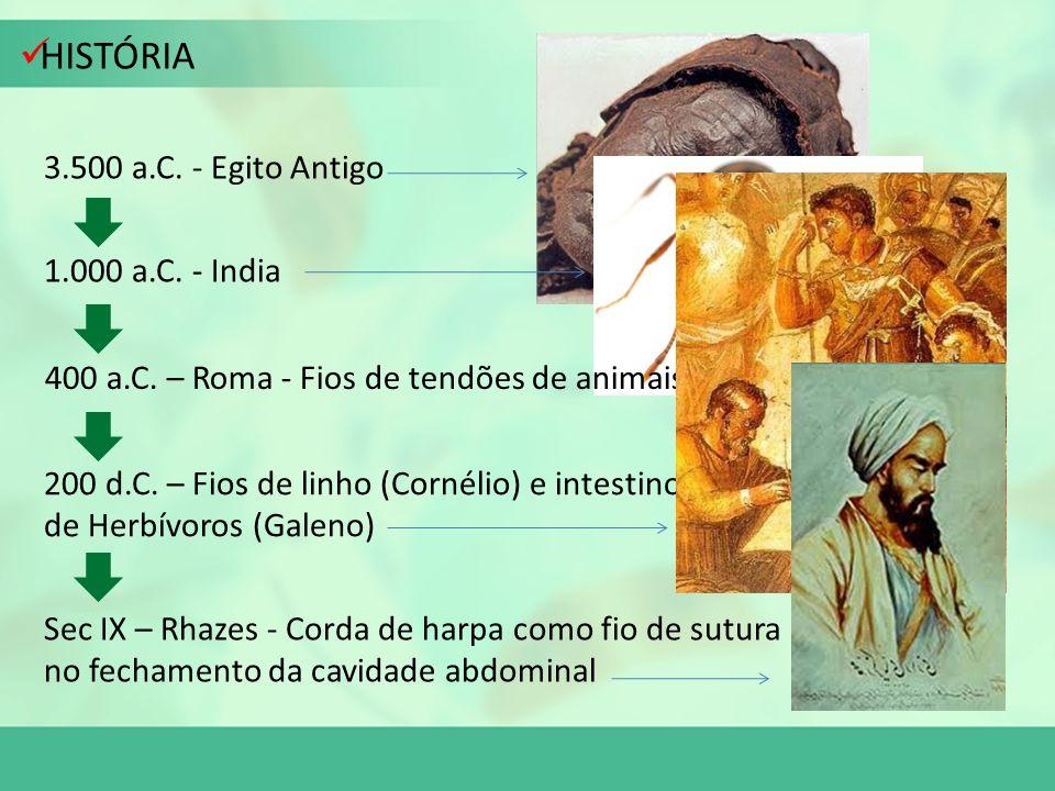 HISTÓRIA 3.500 a.C. - Egito Antigo 1.000 a.C. - India 400 a.C. – Roma - Fios de tendões de animais 200 d.C. – Fios de linho (Cornélio) e intestino de