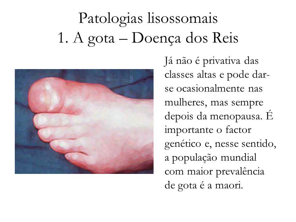 Patologias lisossomais 1. A gota – Doença dos Reis Já não é privativa das classes altas e pode dar- se ocasionalmente nas mulheres, mas sempre depois