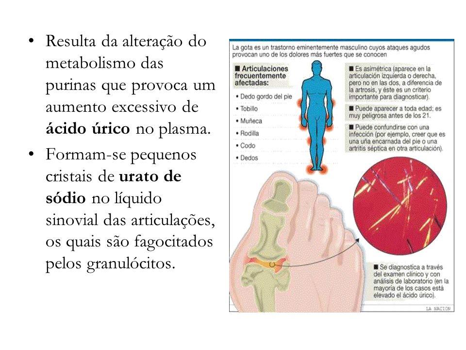 Resulta da alteração do metabolismo das purinas que provoca um aumento excessivo de ácido úrico no plasma. Formam-se pequenos cristais de urato de sód