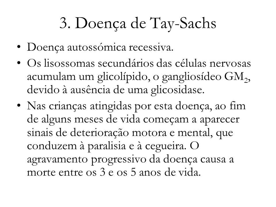 3. Doença de Tay-Sachs Doença autossómica recessiva. Os lisossomas secundários das células nervosas acumulam um glicolípido, o gangliosídeo GM 2, devi