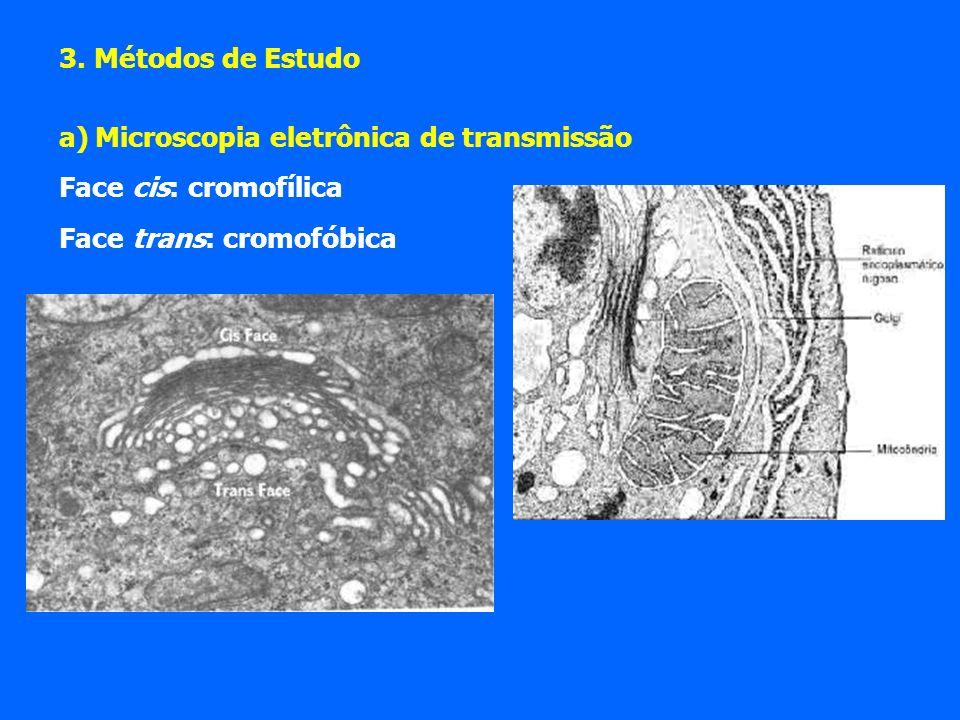 3. Métodos de Estudo a)Microscopia eletrônica de transmissão Face cis: cromofílica Face trans: cromofóbica