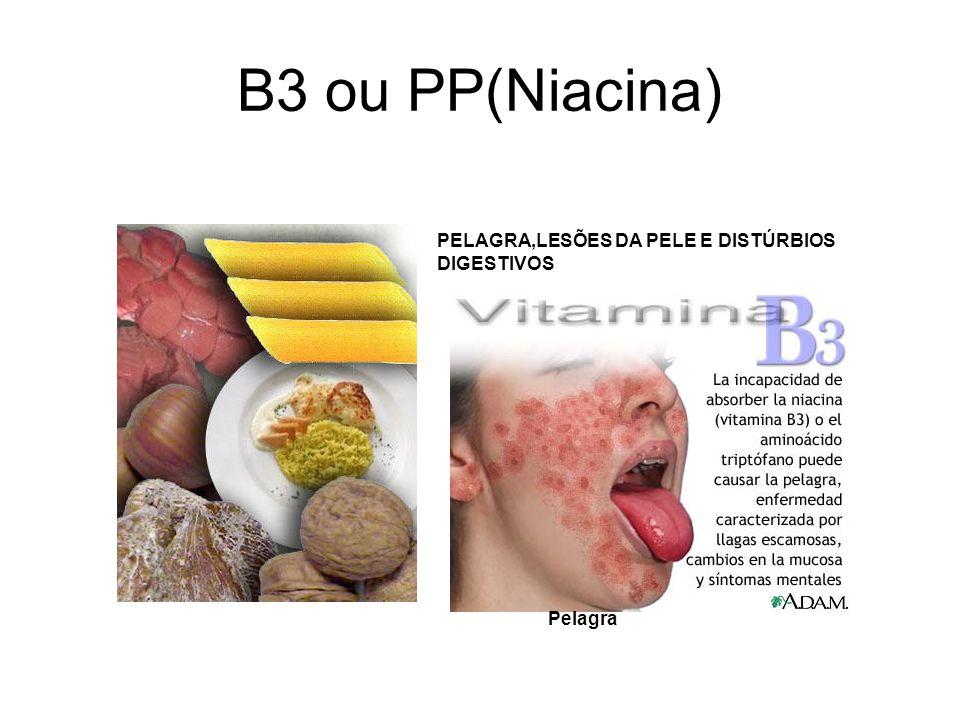 B3 ou PP(Niacina) PELAGRA,LESÕES DA PELE E DISTÚRBIOS DIGESTIVOS Pelagra