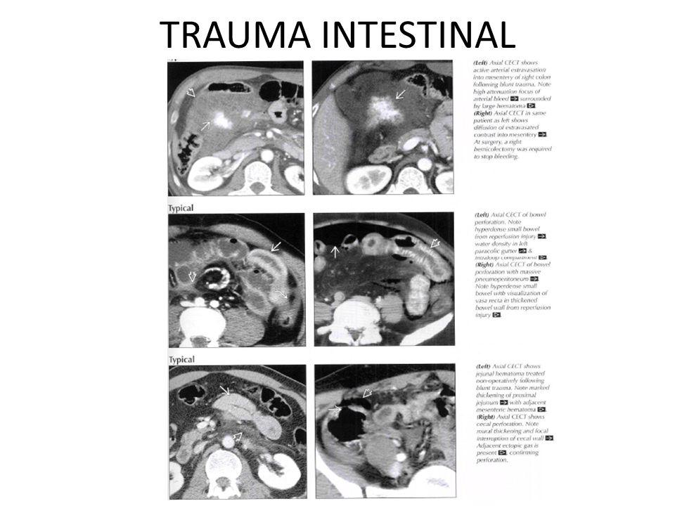 TRAUMA INTESTINAL