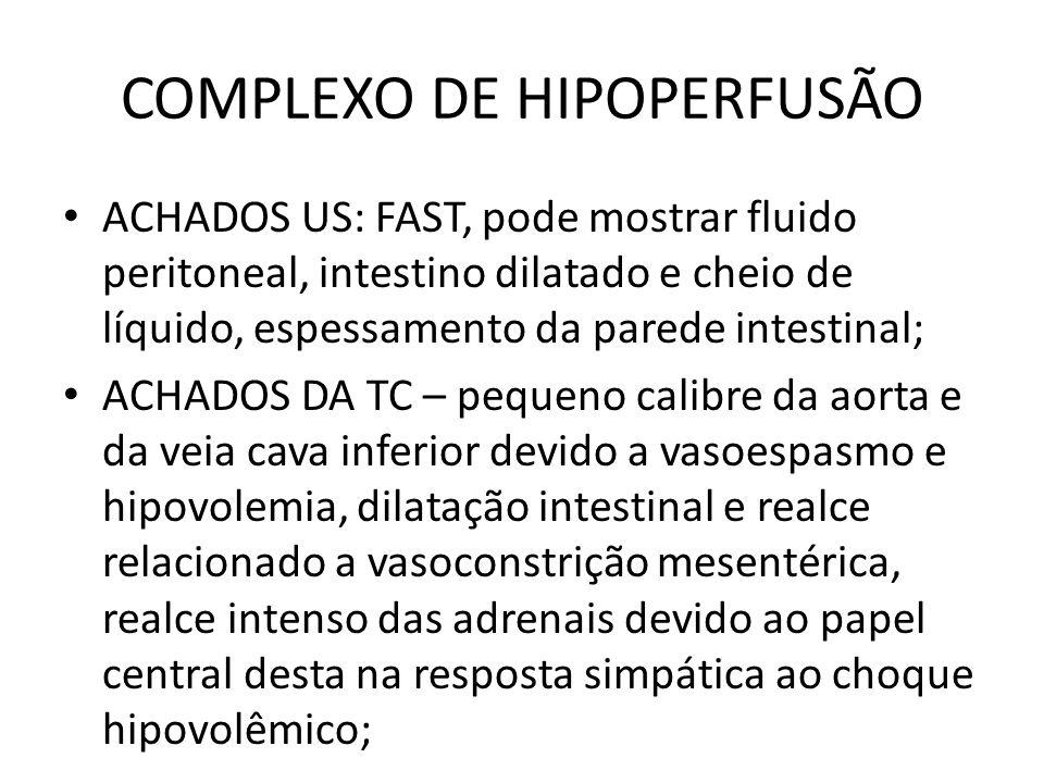COMPLEXO DE HIPOPERFUSÃO ACHADOS US: FAST, pode mostrar fluido peritoneal, intestino dilatado e cheio de líquido, espessamento da parede intestinal; A