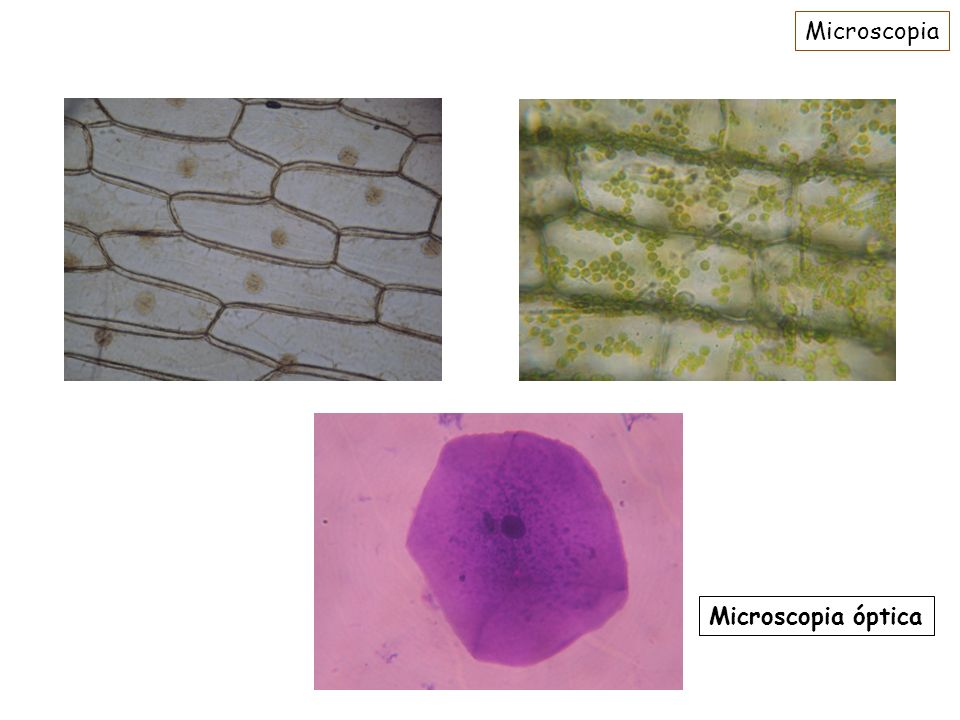 Organelas Pequenos órgãos; Desempenham funções específicas no metabolismo da célula eucarionte; Rodeadas por membrana.