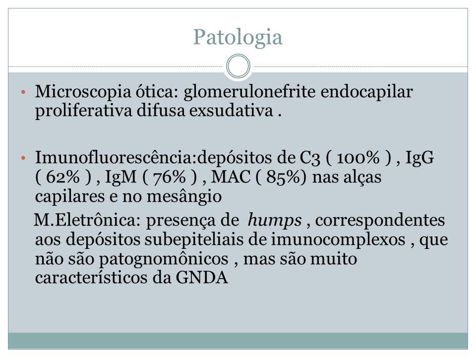 Patologia Microscopia ótica: glomerulonefrite endocapilar proliferativa difusa exsudativa. Imunofluorescência:depósitos de C3 ( 100% ), IgG ( 62% ), I