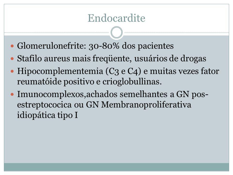 Endocardite Glomerulonefrite: 30-80% dos pacientes Stafilo aureus mais freqüente, usuários de drogas Hipocomplementemia (C3 e C4) e muitas vezes fator