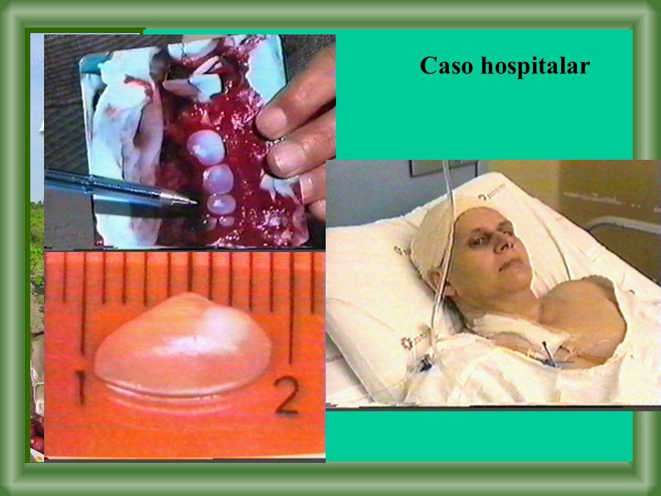 Caso hospitalar