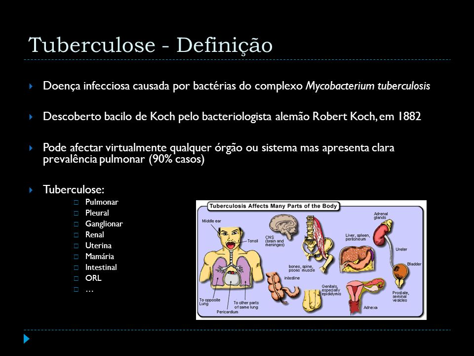 Tuberculose - Definição Doença infecciosa causada por bactérias do complexo Mycobacterium tuberculosis Descoberto bacilo de Koch pelo bacteriologista