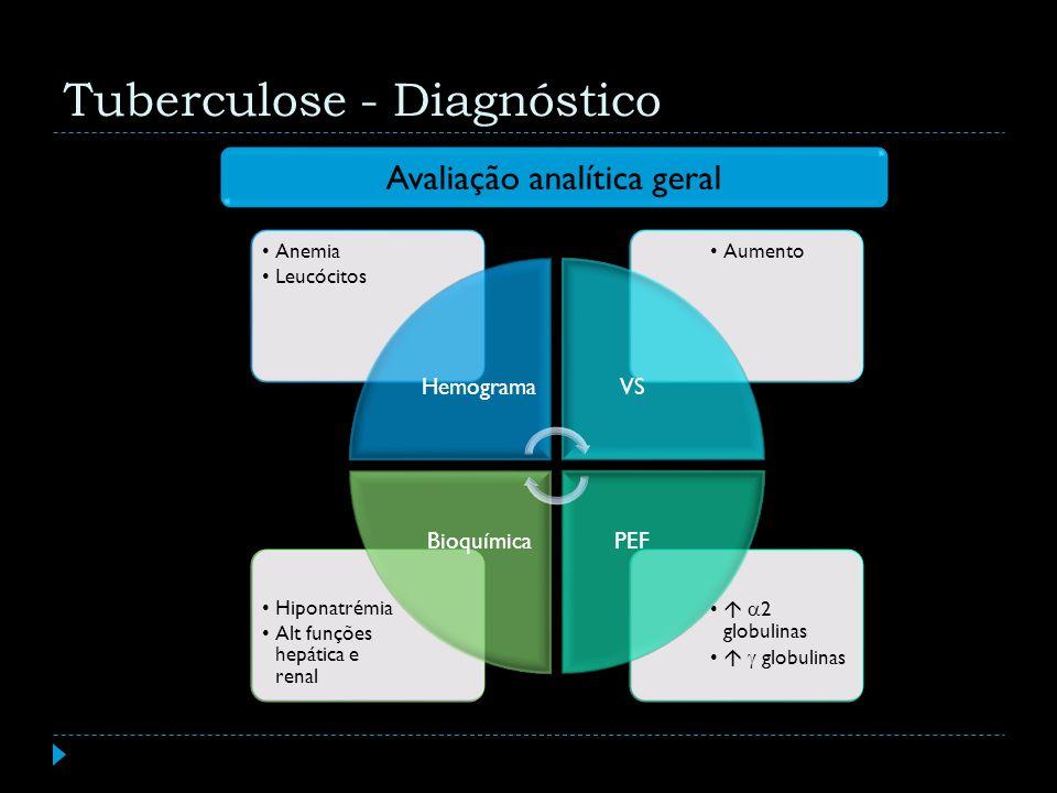 Tuberculose - Diagnóstico Avaliação analítica geral 2 globulinas globulinas Hiponatrémia Alt funções hepática e renal AumentoAnemia Leucócitos Hemogra