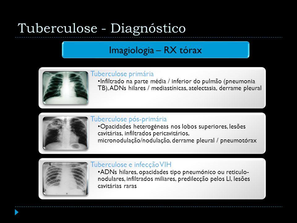 Imagiologia – RX tórax Tuberculose - Diagnóstico Tuberculose primária Infiltrado na parte média / inferior do pulmão (pneumonia TB), ADNs hilares / me