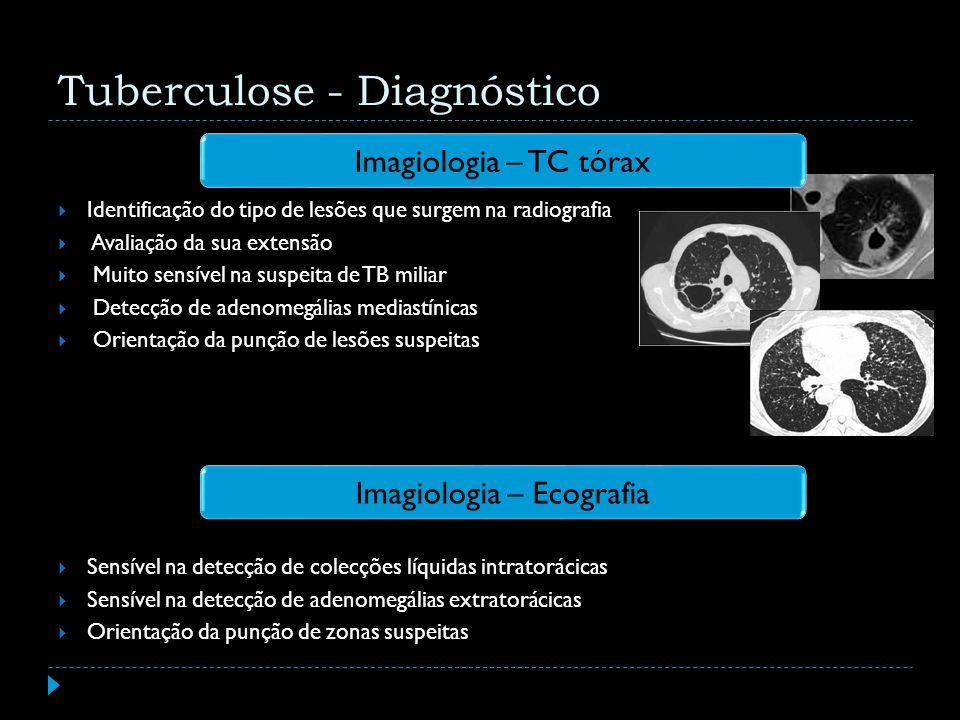 Imagiologia – TC tórax Tuberculose - Diagnóstico Imagiologia – Ecografia Identificação do tipo de lesões que surgem na radiografia Avaliação da sua ex