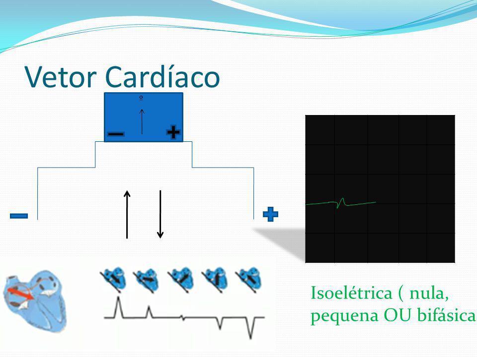 Vetor Cardíaco º Isoelétrica ( nula, pequena OU bifásica)