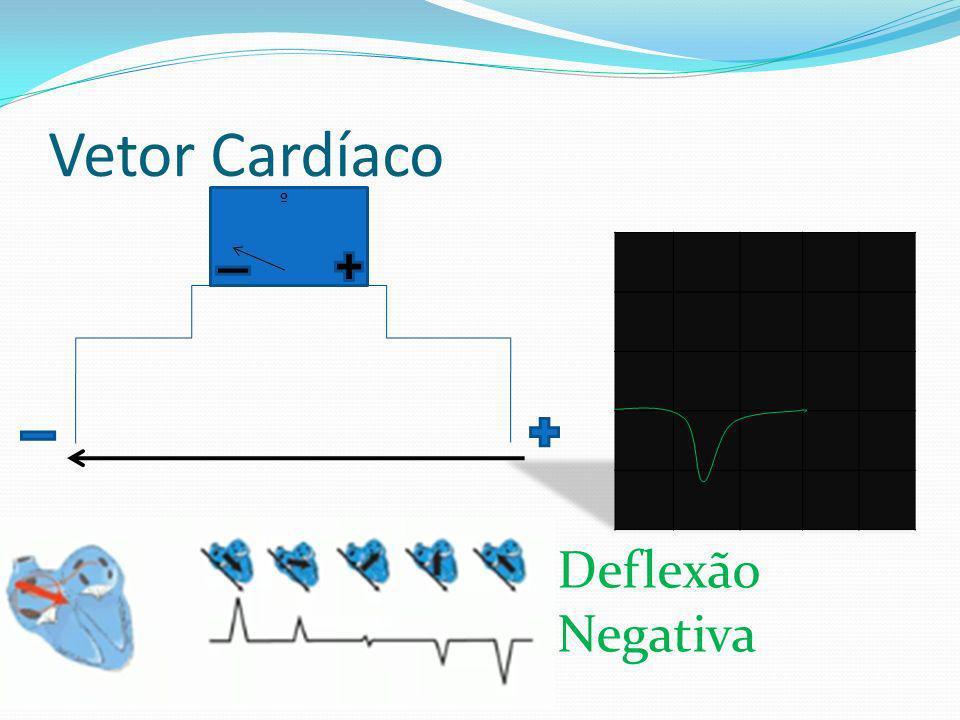 Vetor Cardíaco º Deflexão Negativa