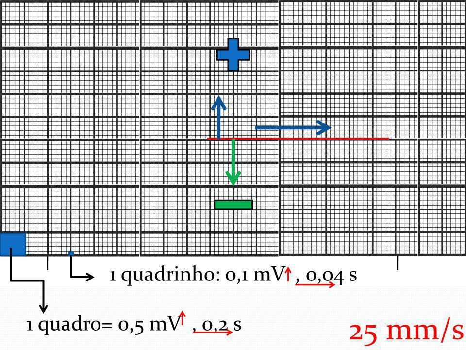 1 quadrinho: 0,1 mV, 0,04 s 1 quadro= 0,5 mV, 0,2 s 25 mm/s