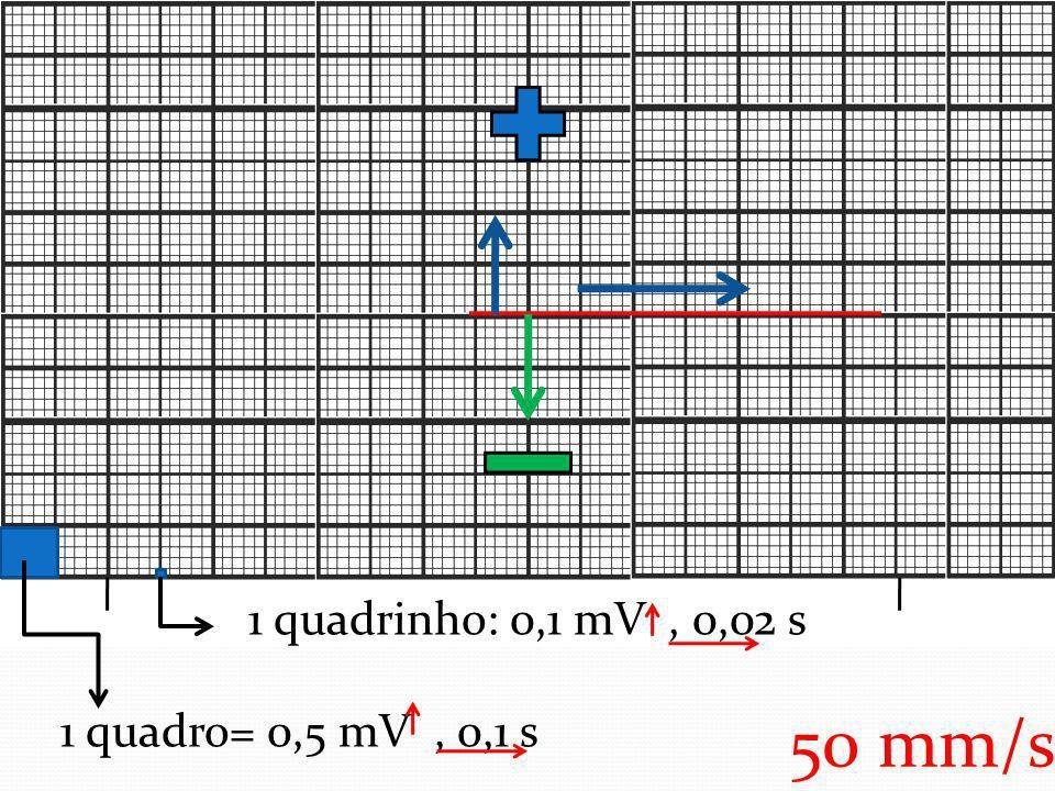 1 quadrinho: 0,1 mV, 0,02 s 1 quadro= 0,5 mV, 0,1 s 50 mm/s