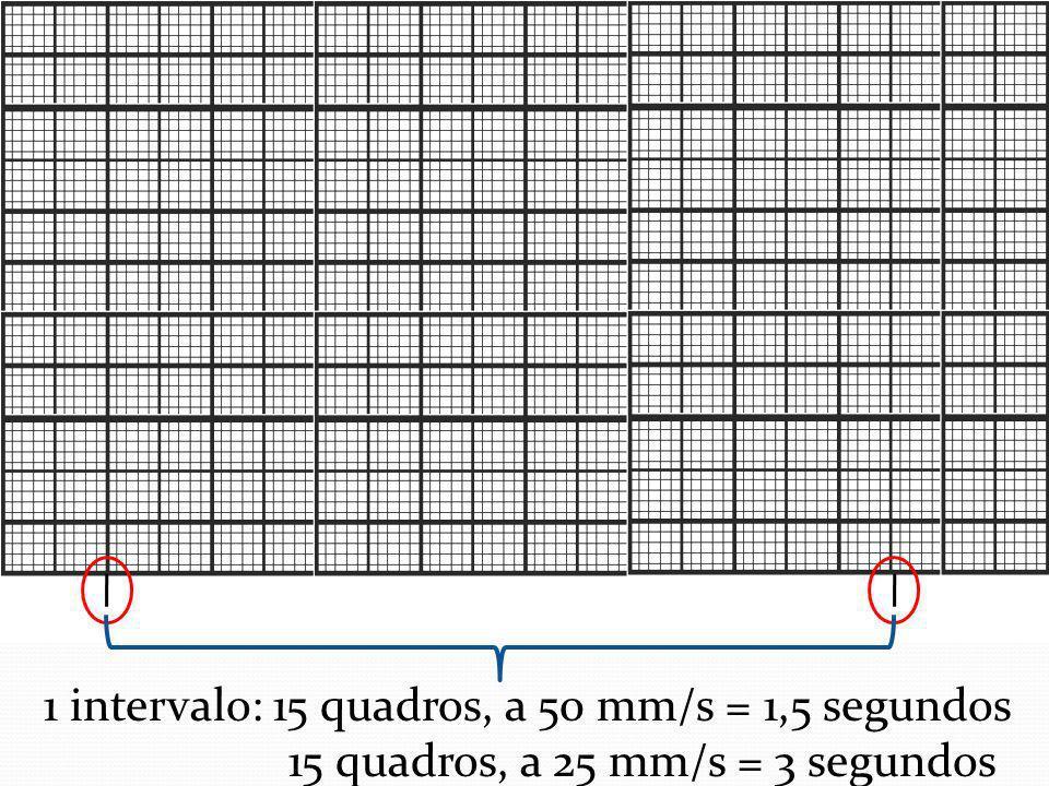 1 intervalo: 15 quadros, a 50 mm/s = 1,5 segundos 15 quadros, a 25 mm/s = 3 segundos