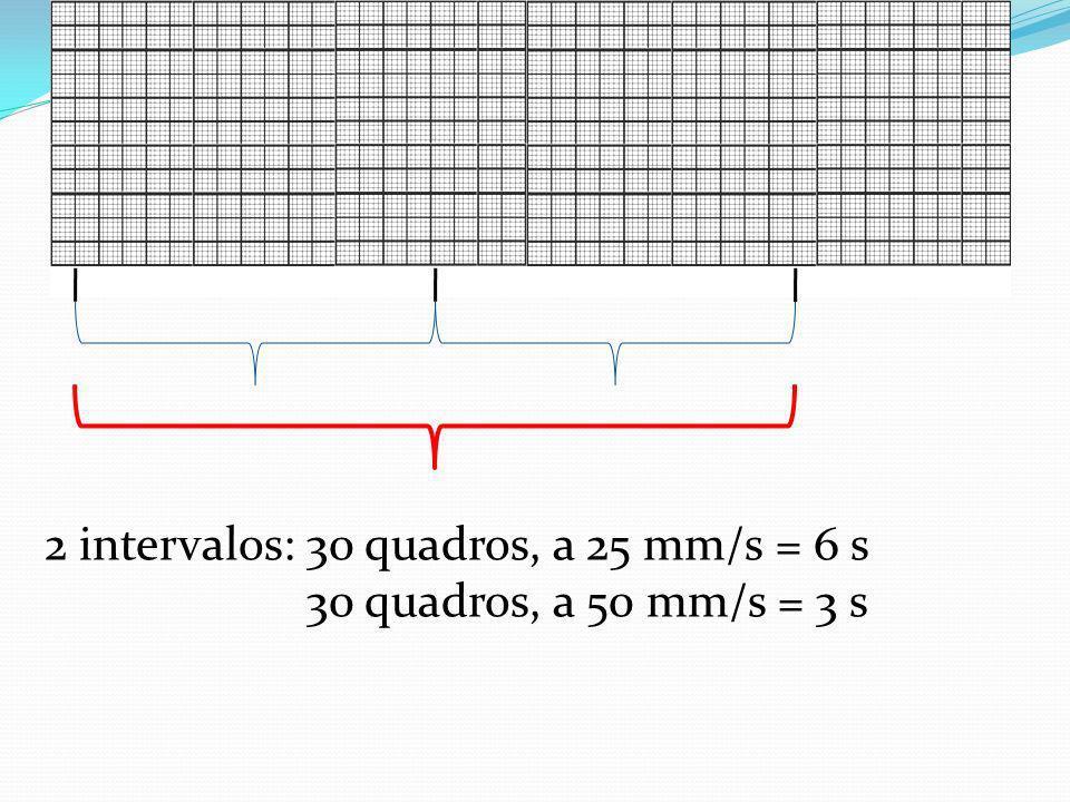 2 intervalos: 30 quadros, a 25 mm/s = 6 s 30 quadros, a 50 mm/s = 3 s