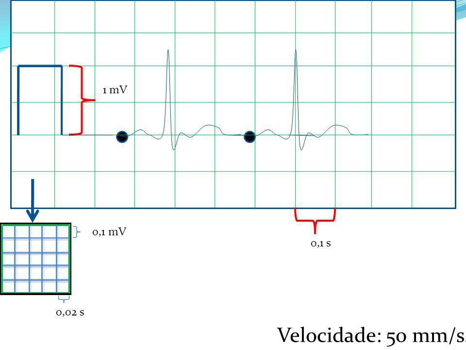 0,1 mV 1 mV 0,02 s 0,1 s Velocidade: 50 mm/s.