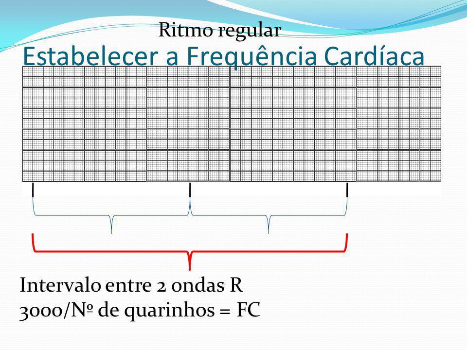 Intervalo entre 2 ondas R 3000/Nº de quarinhos = FC Estabelecer a Frequência Cardíaca Ritmo regular